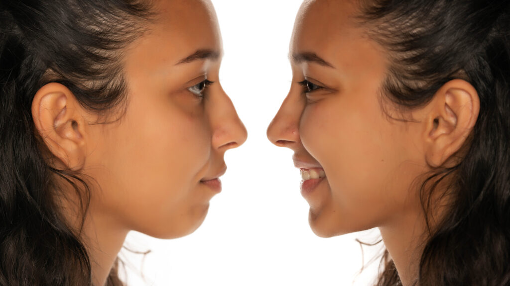 comparison portrait of young latin woman before and after nose job on white background