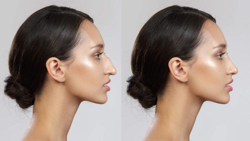 rinoplastia antes e depois