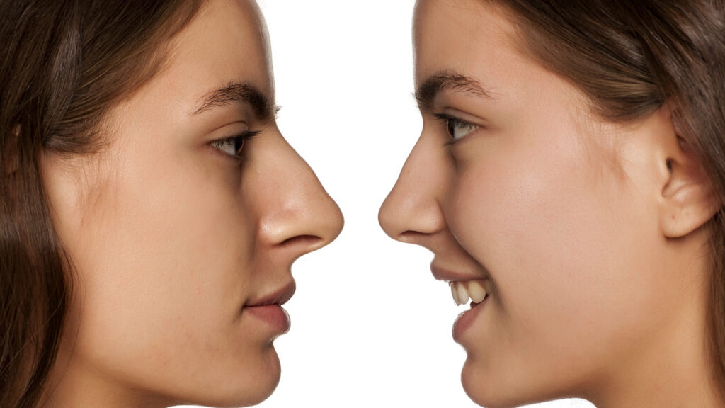 comparative portrait of the same woman, before and after rhinoplasty