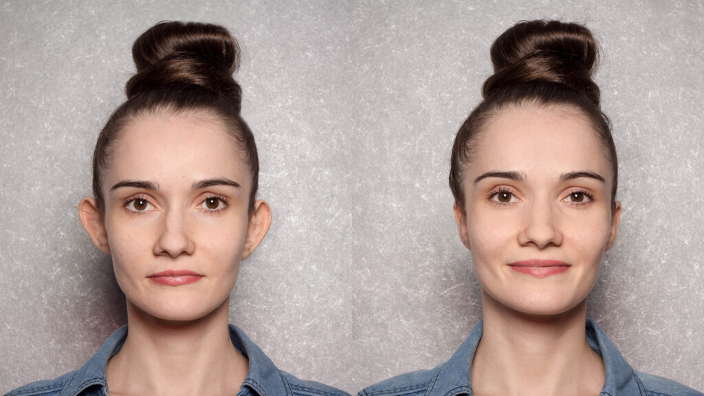otoplasty - before and after the operation