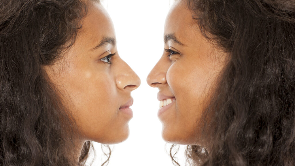 comparison of young women before and after nose surgery